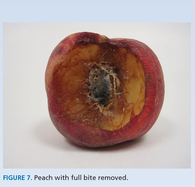 Figure 7 from Teaching the fruits of pressure ulcer staging