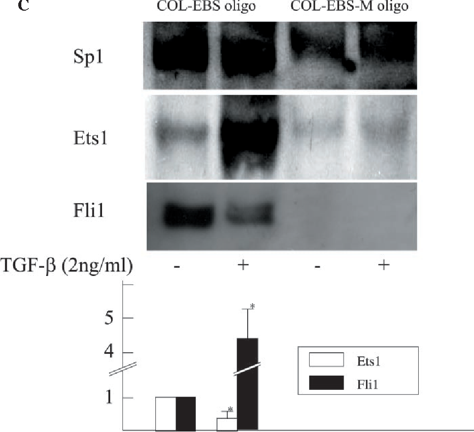 Figure 3. The effects of TGF-b1 on the expression of PKC-a and -d in normal fibroblasts. (A) To determine the amounts of PKC-a and -d in cell lysates, fibroblasts were serum-starved for 24 h and treated with TGF-b1 for the period indicated. Immunoblotting was performed using anti-PKC-a or -d antibody. The same membrane was then stripped and reprobed with anti-b-actin antibody as a loading control. (B) The subcellular distribution of PKC-a and -d was visualized using immunofluorescence. Fibroblasts were serum-starved for 24 h and incubated in the presence or absence of TGF-b1 for 1 h. Magnification:·630. (C) Fibroblasts were serum-starved for 24 h and treated with TGF-b1 (2 ng/ml) for 12 h. Cell lysates were incubated with the COL-EBS oligo or COL-EBS-M oligo as described under 'Materials and Methods.' Proteins bound to each nucleotide were isolated with streptavidin-agarose beads, and Sp1, Ets1 or Fli1 was detected by immunoblotting. The levels of Ets1 (open bars) and Fli1 (closed bars) bound to COL-EBS oligo quantitated by scanning densitometry are shown relative to the level in untreated cells (1.0). EBS, Ets-binding site.