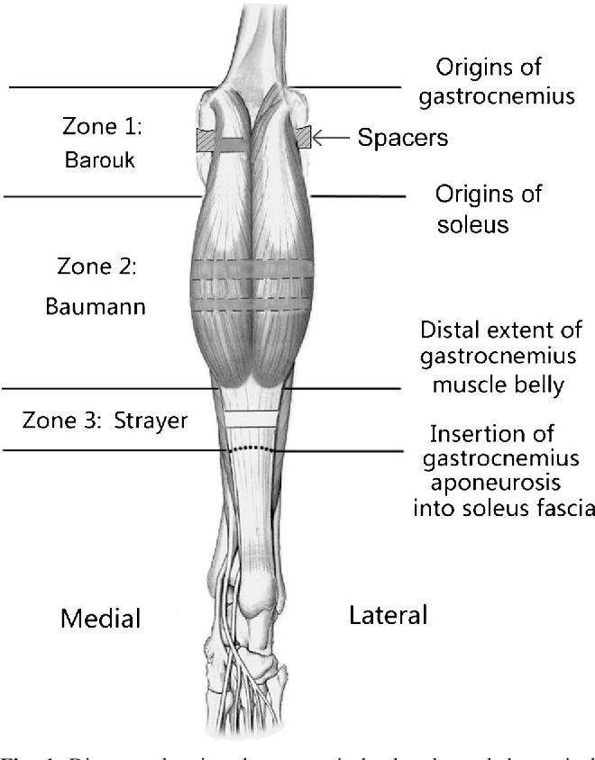 Comparison of the efficacy of three isolated gastrocnemius ...