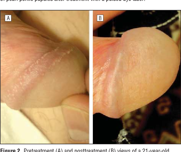 Penile what papules pearly is How do