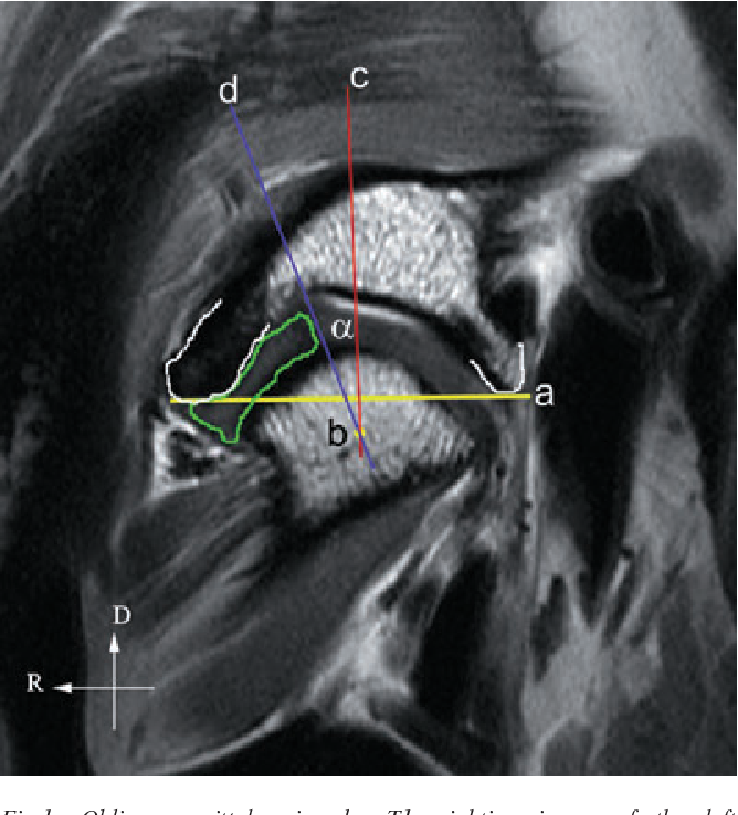 Figure 1 From Magnetic Resonance Imaging Of The Equine