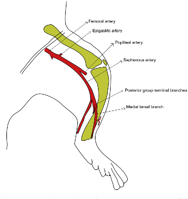 Figure 1 from Saphenous artery-based flap models in rats