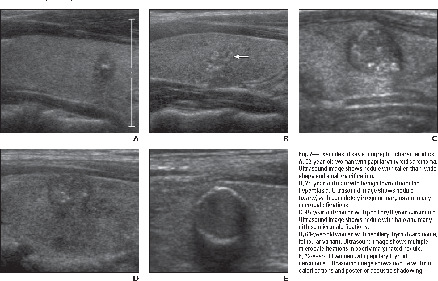 Figure 2 From Subcentimeter Thyroid Nodules Utility Of