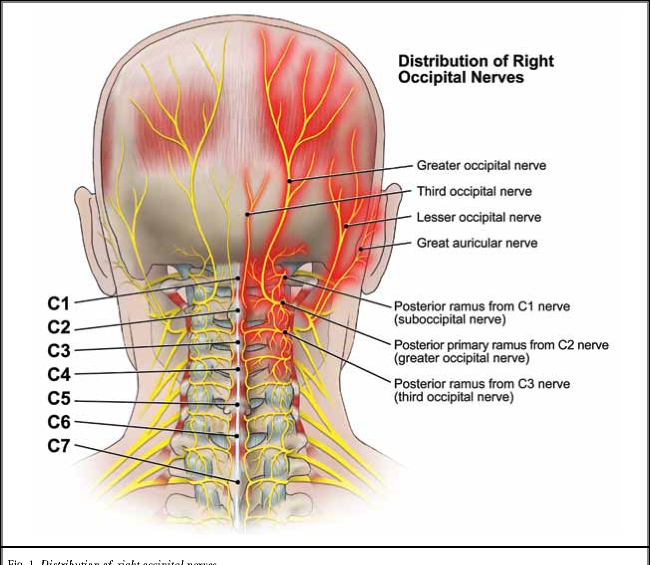Figure 1 from Pulsed radiofrequency for occipital neuralgia