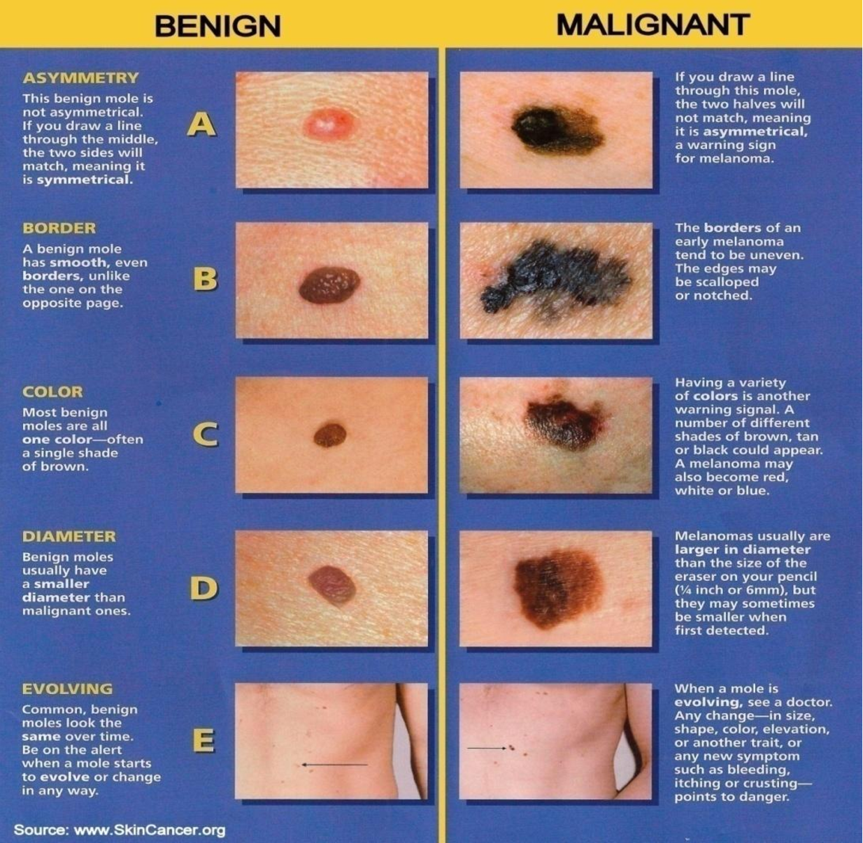 Figure 3 from Melanoma Skin Cancer Detection : A Review