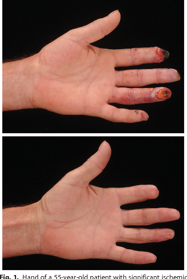 Figure 1 from Botox therapy for ischemic digits  - Semantic