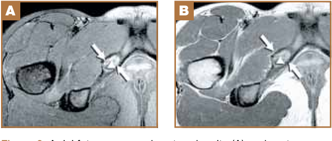 Stress Injuries Of The Ischiopubic Synchondrosis Semantic Scholar The ischiopubic synchondrosis forms from two metaphyseal equivalents at the ischial and pubic bones. ischiopubic synchondrosis