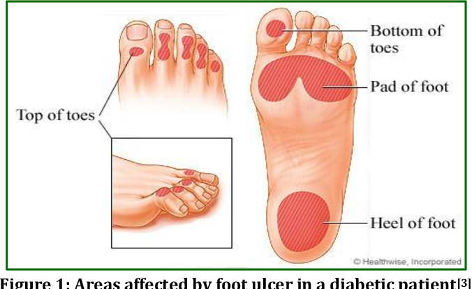 Diabetic Foot Ulcers Identification Diagnosis And Cure