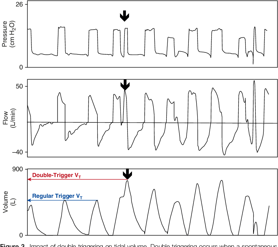 Figure 3 from Fifty Years of Research in ARDS  Spontaneous