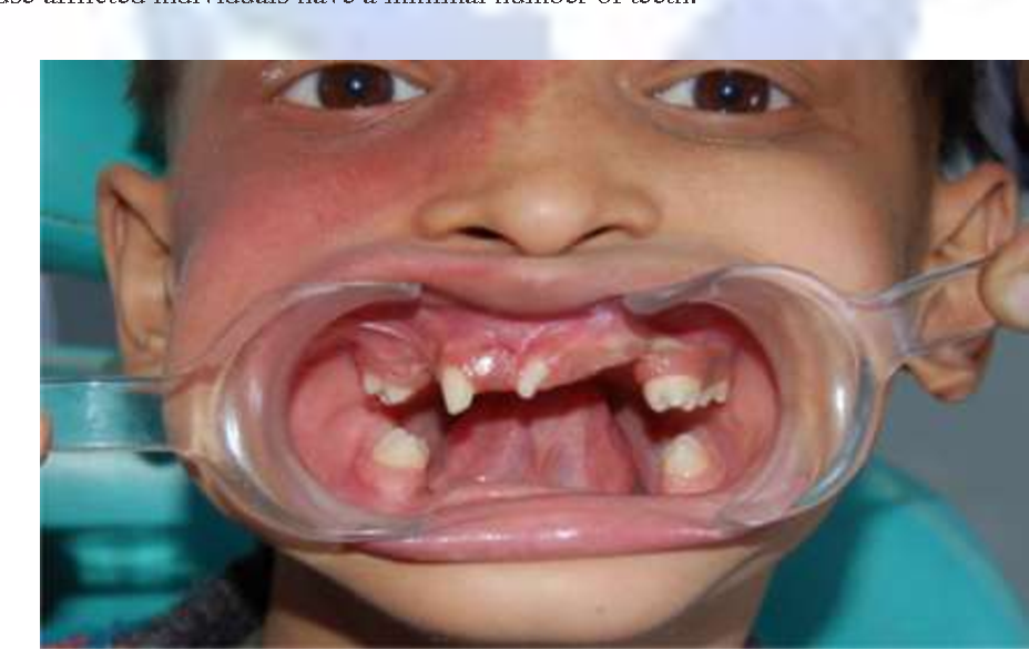 Figure 4 from Anhidrotic Ectodermal Dysplasia : The Dental