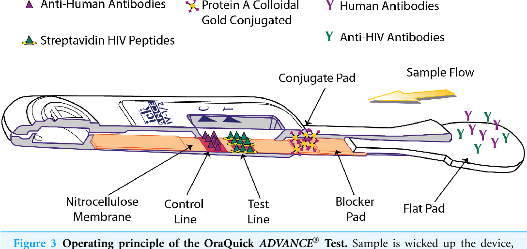 PDF] Human anti-HIV IgM detection by the OraQuick ADVANCE