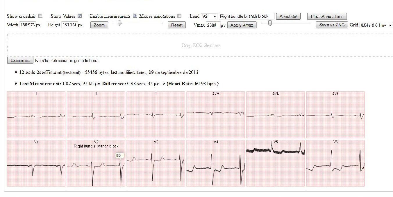 Figure 1 from An HTML5-based ECG viewer - Semantic Scholar