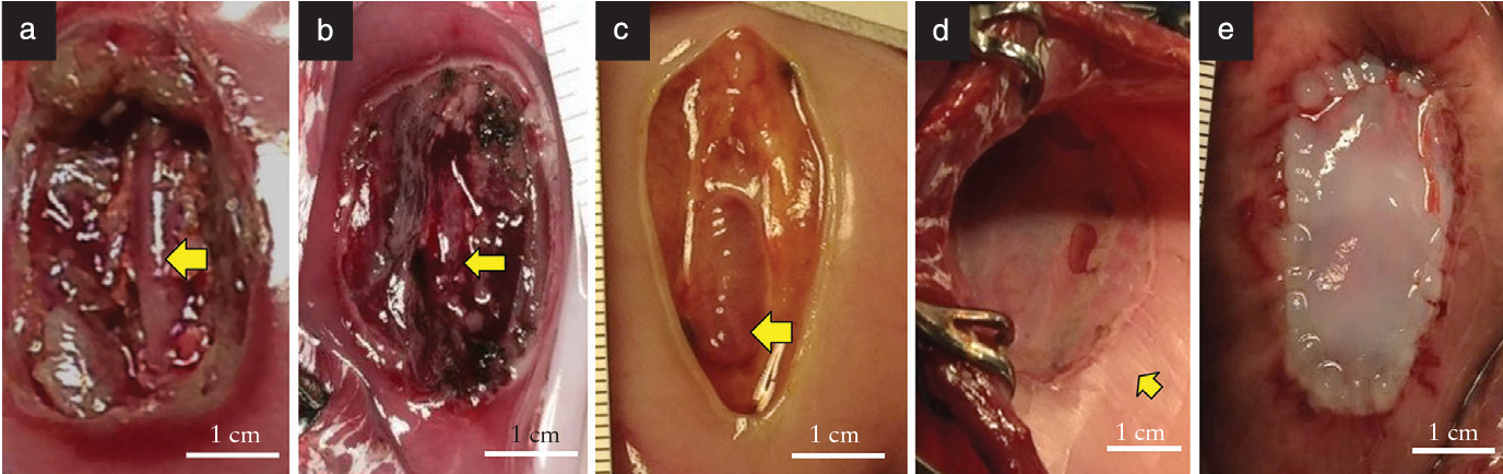 Figure 1 from Cryopreserved human umbilical cord patch for