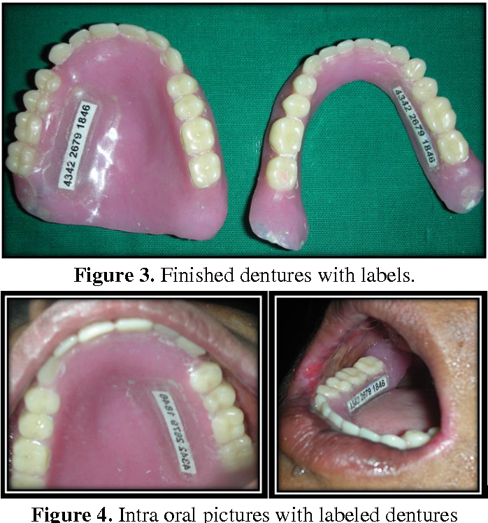 Figure 3 From Denture Marking For Forensic Identification Using Aadhar Number A Case Report Semantic Scholar