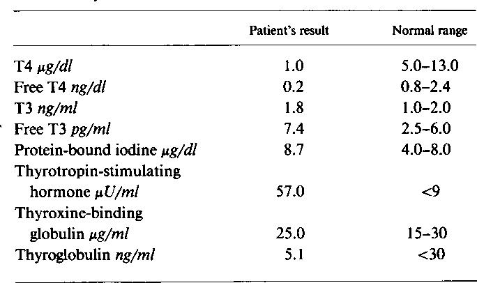 Table I From A 3 Splice Site Mutation In The Thyroglobulin Gene