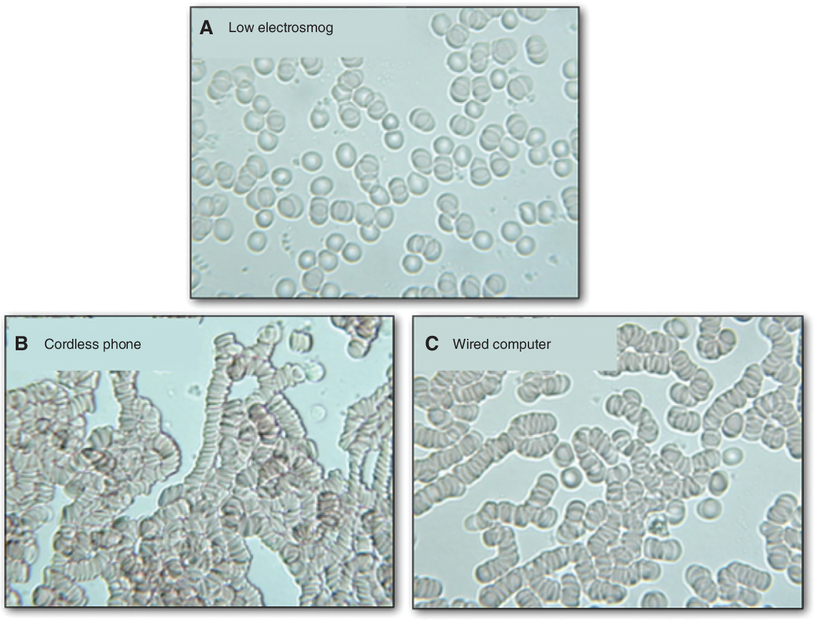 Figure 4 Live blood cells in a low-electrosmog environment (A), after using a cordless phone for 10 min (B), and after using a wired computer for 70 min (C).