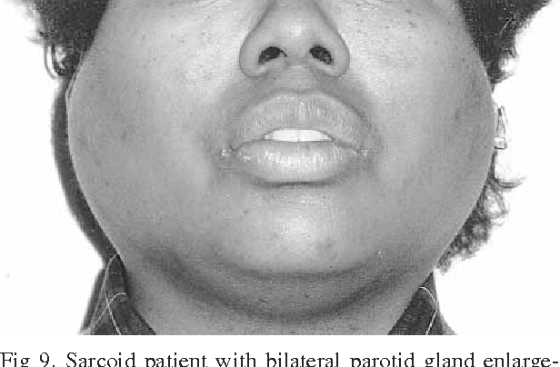 Figure 9 from Bilateral parotid swelling: a review