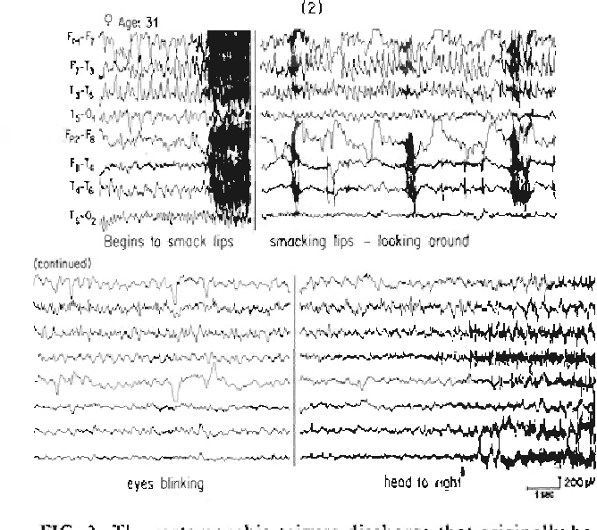 Figure 3 from Scalp-recorded ictal patterns in focal