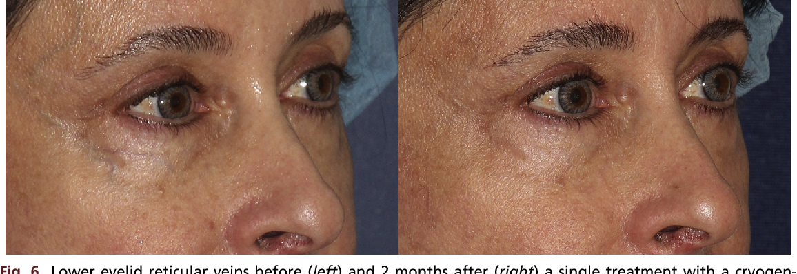 Figure 6 from Dark circles: etiology and management options