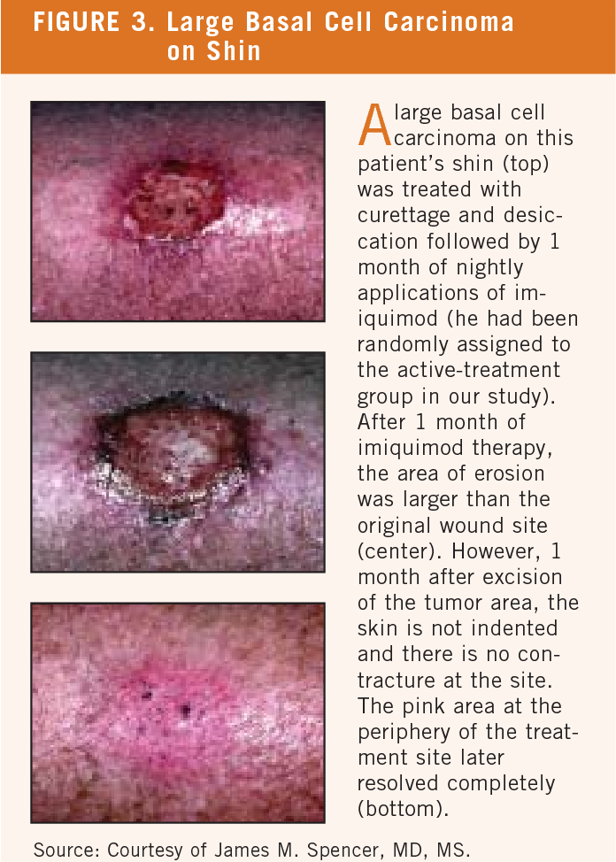 Figure 3 From Cutaneous Oncology And Immunomodulator Therapy From Warts To Skin Cancers Semantic Scholar