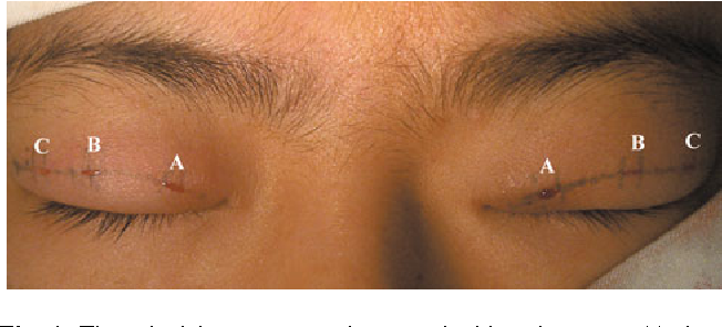 Figure 1 from Construction of a Double Eyelid: An Uncut