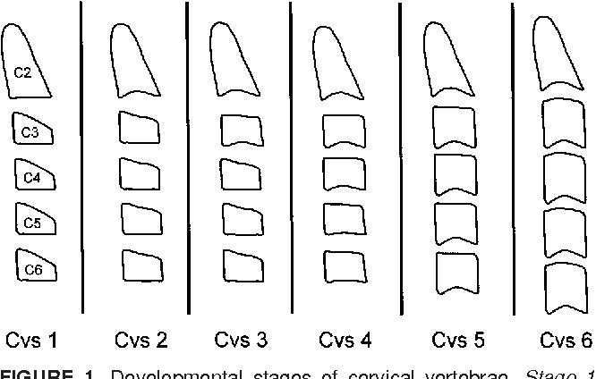 Pdf An Improved Version Of The Cervical Vertebral