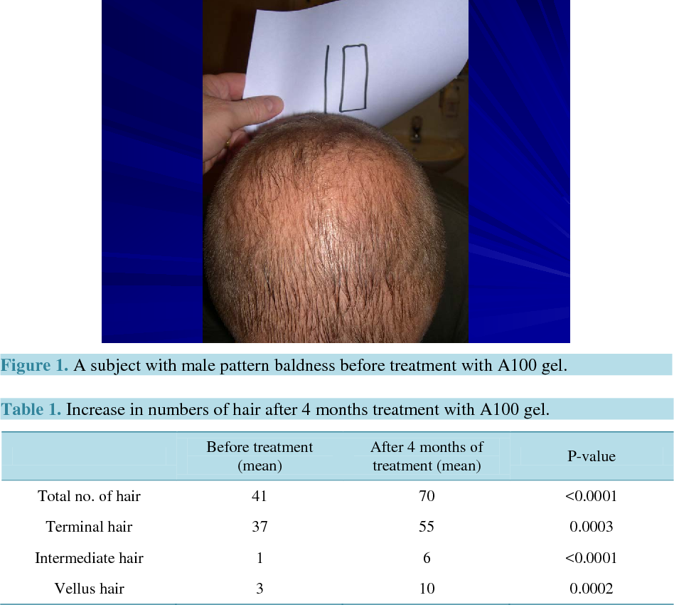 PDF] The Effect of A47 Gel, on Hair Growth and Hair Quality: An