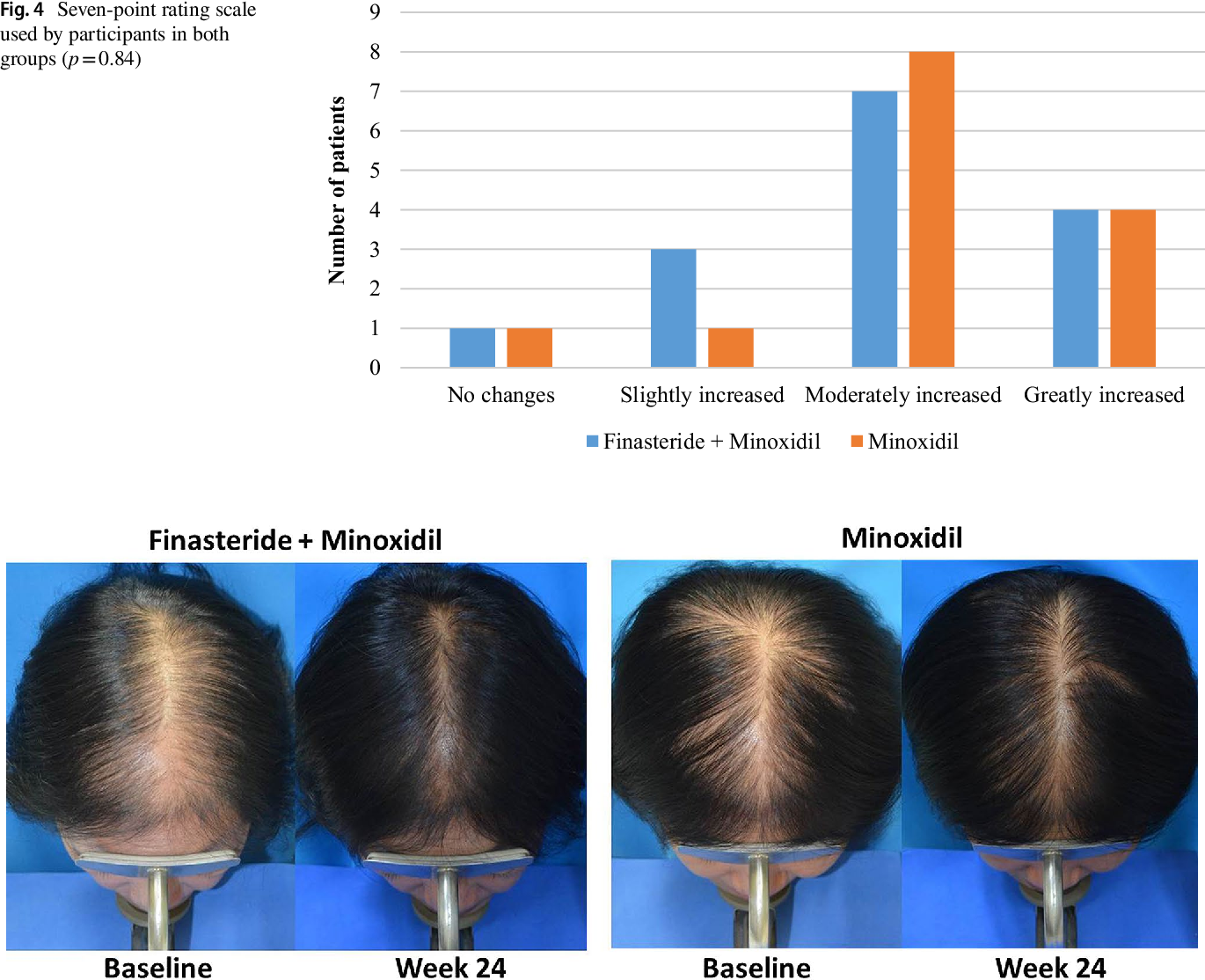 Figure 4 From Efficacy Of Topical Combination Of 0 25 Finasteride And 3 Minoxidil Versus 3 Minoxidil Solution In Female Pattern Hair Loss A Randomized Double Blind Controlled Study Semantic Scholar