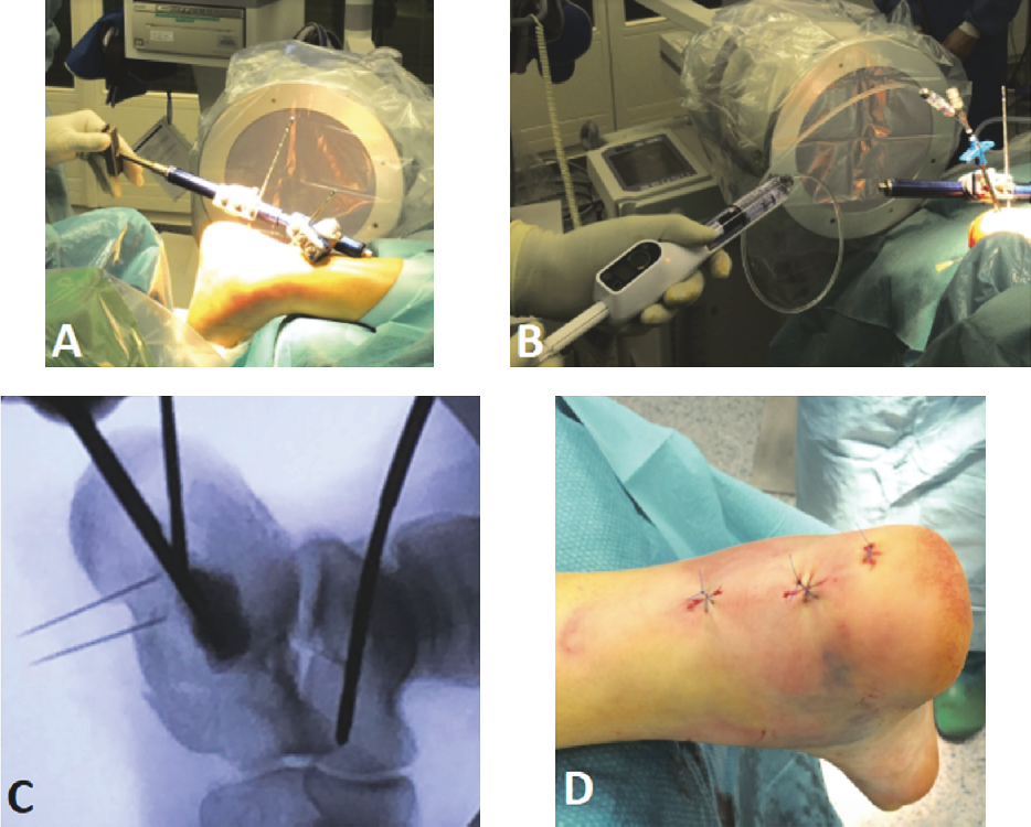 Figure 2 from A Novel Minimally Invasive Reduction Technique
