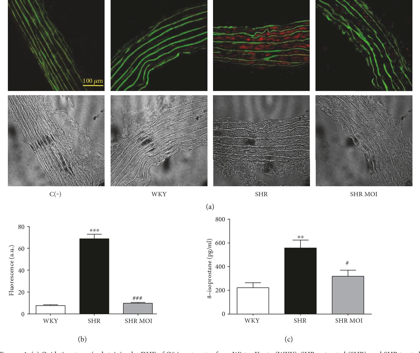PDF] Moringa oleifera Seeds Attenuate Vascular Oxidative and