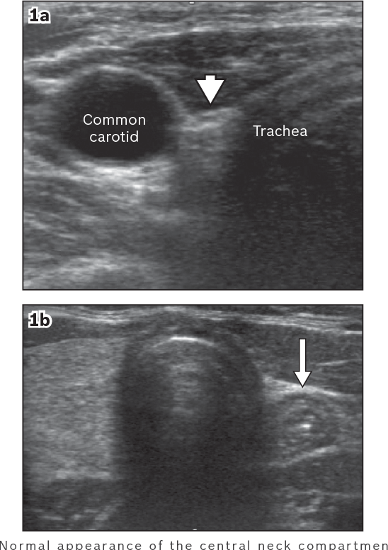 Figure 1 From Post Thyroidectomy Neck Ultrasonography In Patients With Thyroid Cancer And A Review Of The Literature Semantic Scholar