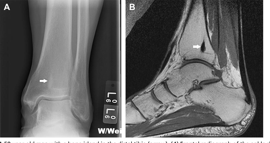 Figure 1 from Benign bone tumors  - Semantic Scholar