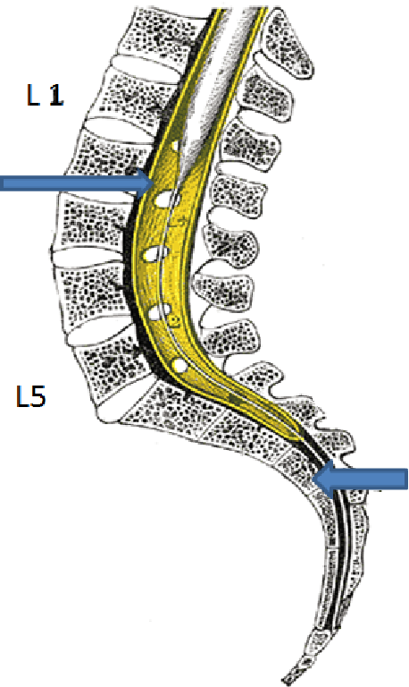 Figure 5 From Arterio Venous Fistula Avf Of Filum Terminale Mri Diagnosis A Casereport Semantic Scholar Er liegt als verlängerung der pia mater spinalis innerhalb des duralsacks und ist von. semantic scholar