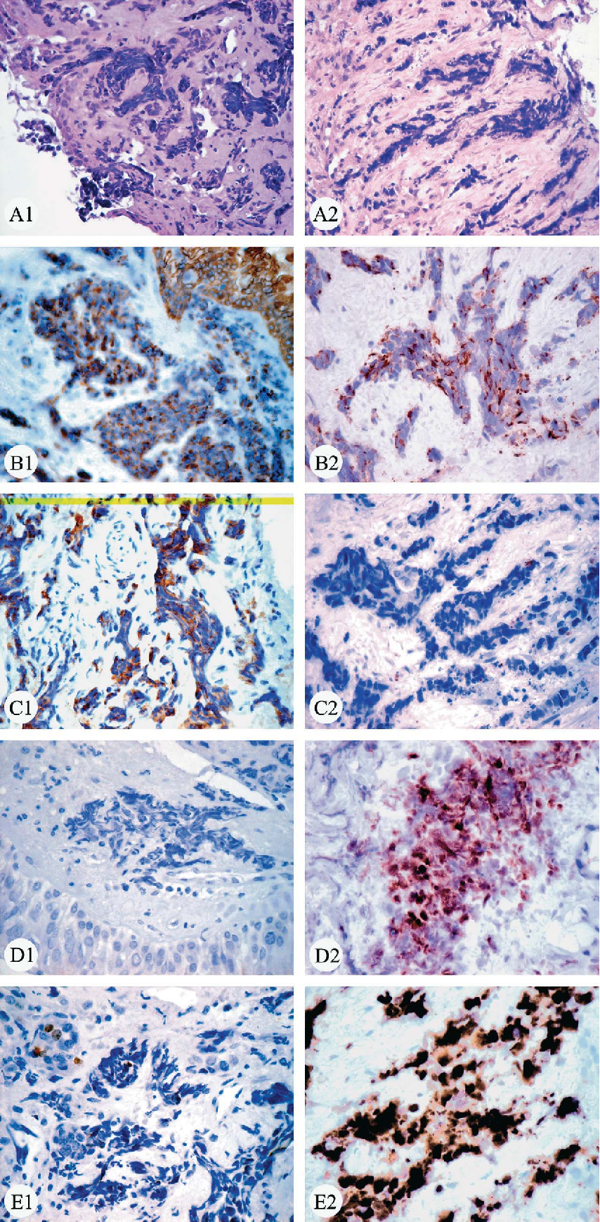 Figure 3 from Typical and atypical pulmonary carcinoid tumor