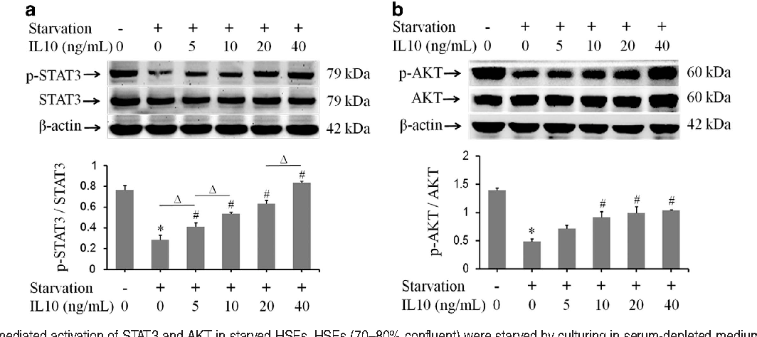 IL10 inhibits starvation-induced autophagy in hypertrophic
