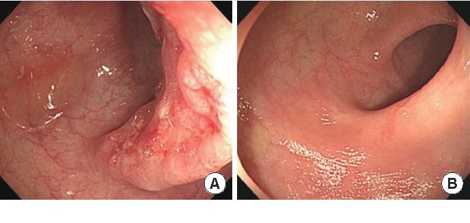 Pdf A Case Of Sigmoid Colon Tuberculosis Mimicking Colon Cancer Semantic Scholar