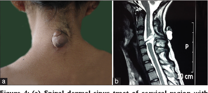 PDF] Spinal dorsal dermal sinus tract: An experience of 21
