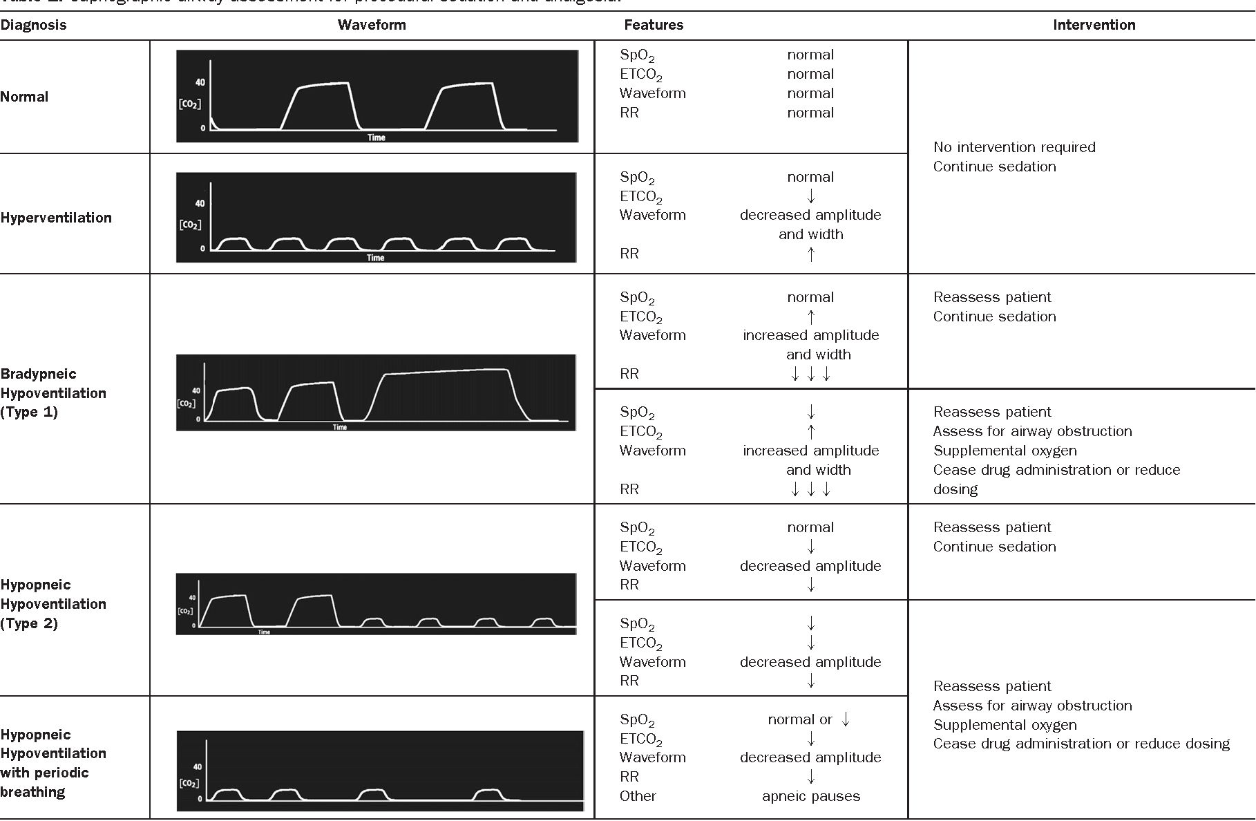 Capnography for procedural sedation and analgesia in the
