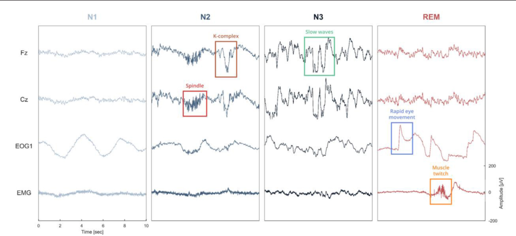 Figure 1 from Sleep: An Open-Source Python Software for