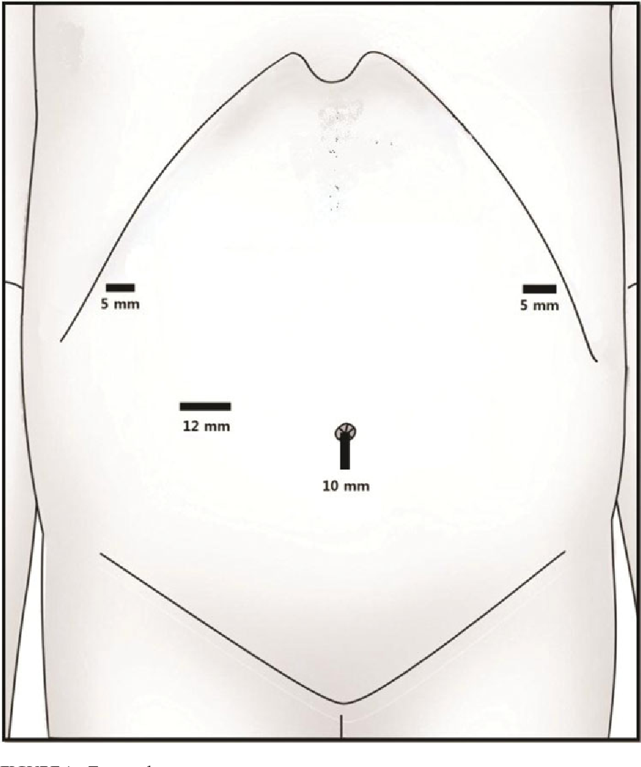 Figure 1 from Technical Feasibility of Enterotomy Closure