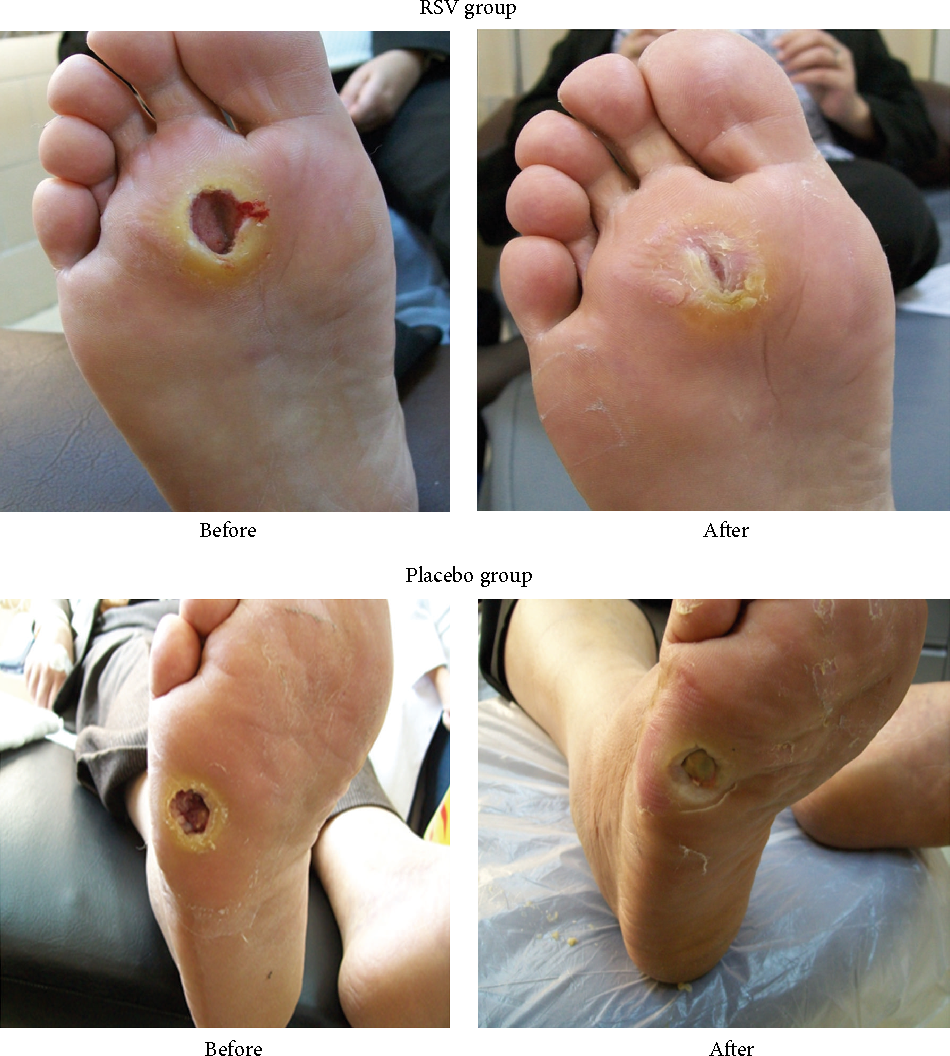 Figure 2 From Resveratrol Promotes Foot Ulcer Size Reduction In