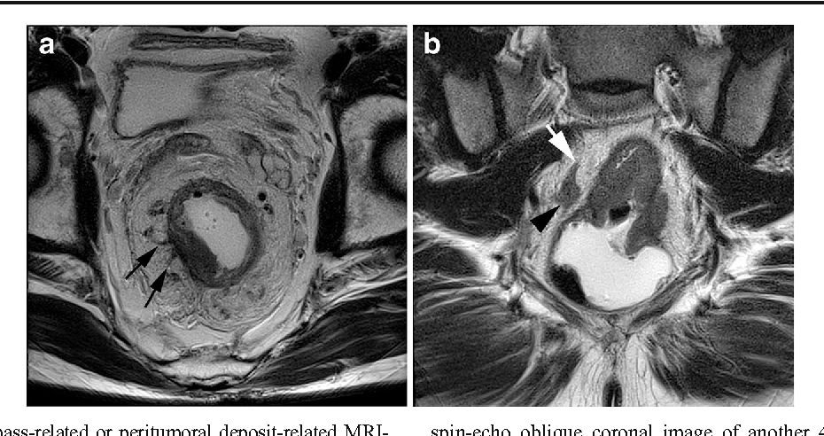Mri Detected Extramural Vascular Invasion Is An Independent Prognostic Factor For Synchronous Metastasis In Patients With Rectal Cancer Semantic Scholar