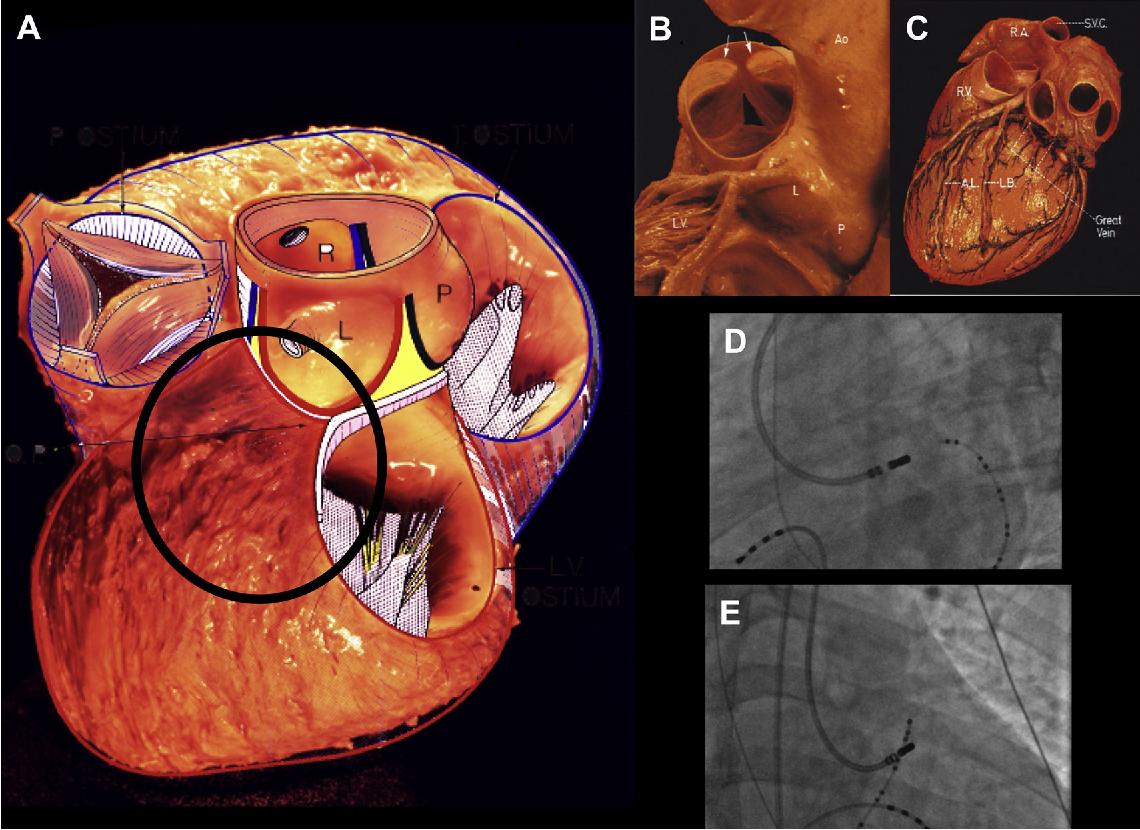 Figure 4 from Anatomy for Ventricular Tachycardia Ablation