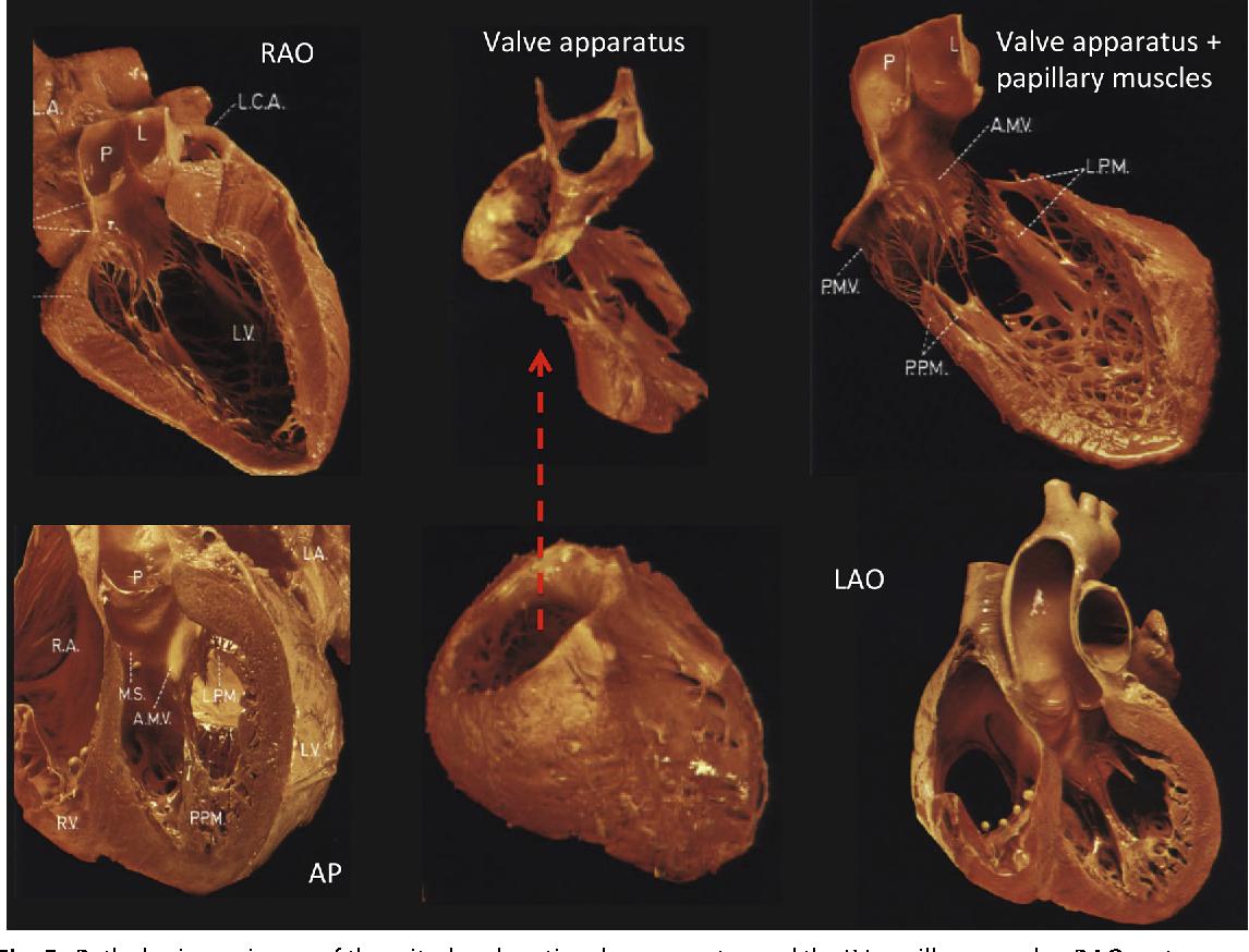 Figure 5 from Anatomy for Ventricular Tachycardia Ablation