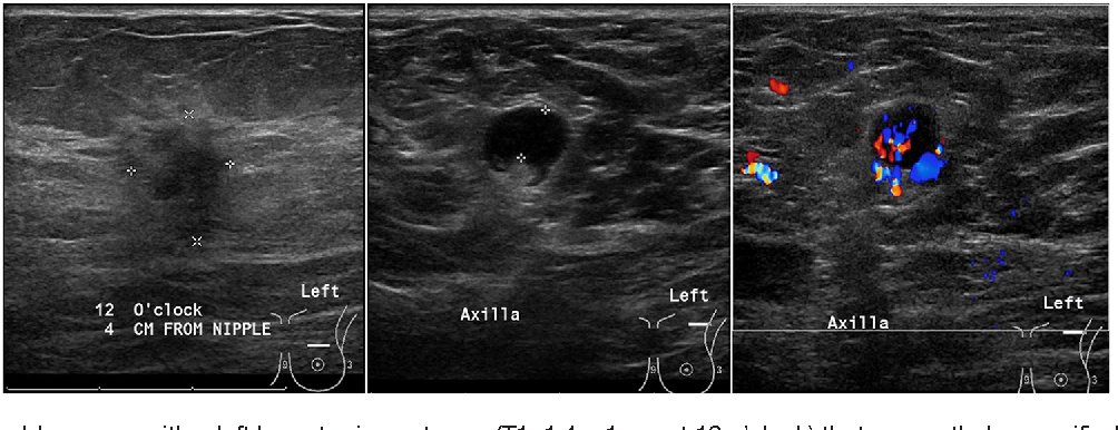 Figure 4 From The Relevance Of Ultrasound Imaging Of Suspicious Axillary Lymph Nodes And Fine Needle Aspiration Biopsy In The Post Acosog Z11 Era In Early Breast Cancer Semantic Scholar
