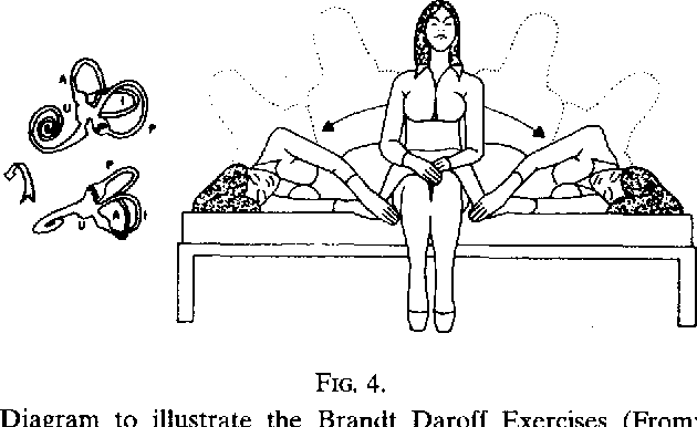 Figure 4 From The Medical Management Of Vertigo Semantic Scholar