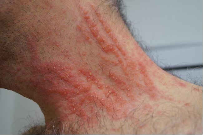 Streaky, whiplash-like erythema and succulent papules