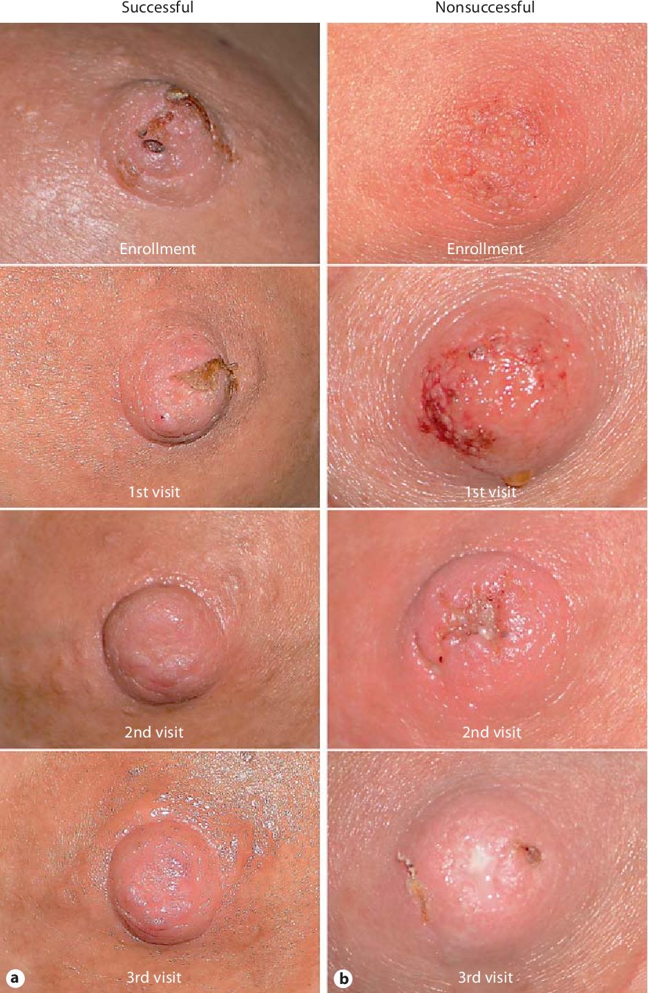 Causes of nipple pain