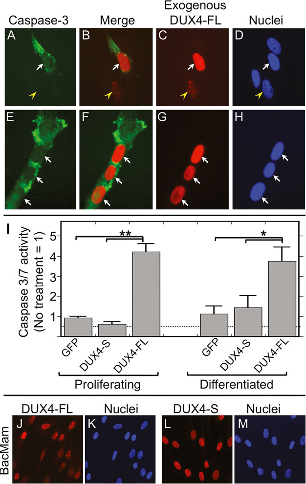 Expression of FSHD-related DUX4-FL alters proteostasis and