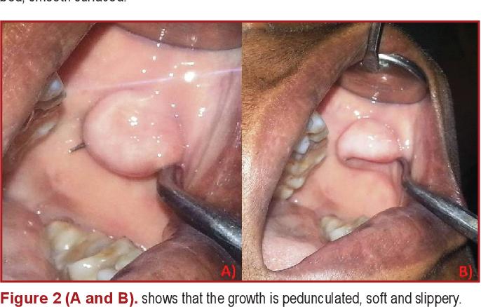 PDF] Intraoral lipoma – A rare case presentation - Semantic